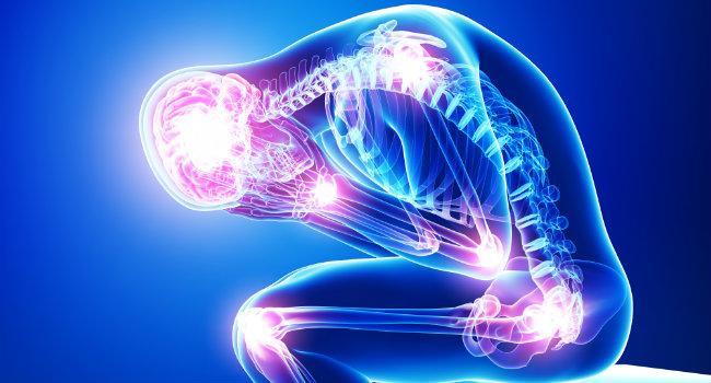 La fibromyalgie en lien avec une lésion professionnelle